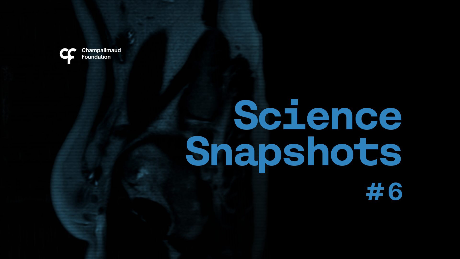 Science Snapshot: Deciphering the Magnetic Signature of Cancer